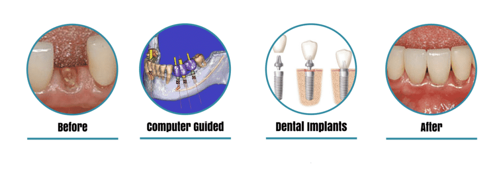 before and after of a dental implant with a computer guider