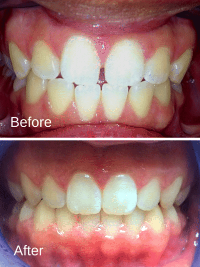 Patient1_BeforeAfter_Invisalign-e1441385145543