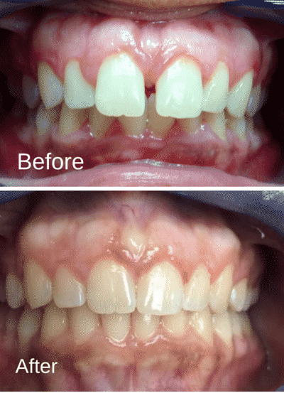 Patient2_BeforeAfter_Invisalign-e1441385208473