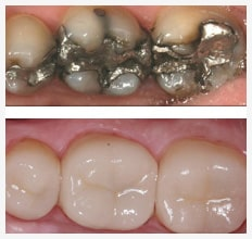cad and cam improvement to beautiful teeth