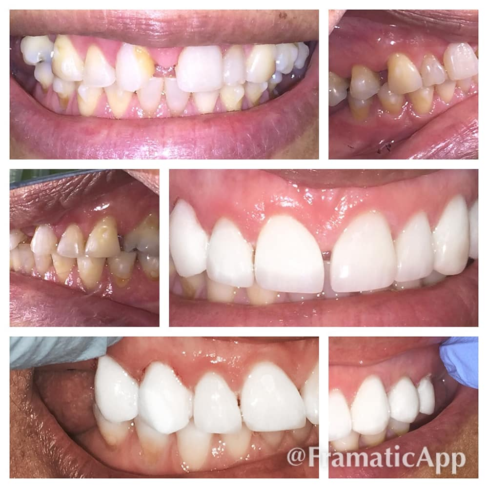 Composite Fillings Dentist Washington Heights Nyc