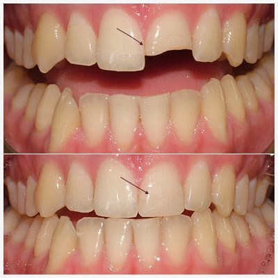 Chipped tooth before and after at Esthetix Dental Spa in NYC