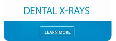 learn more about dental x-rays