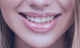 Affordable Teeth Whitening - Professional Grade Dentist Office