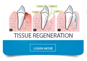 learn more about tissue regeneration