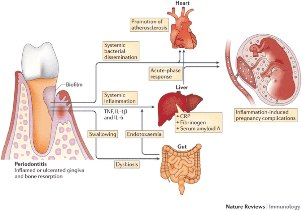 oral health and cardiovascular disease