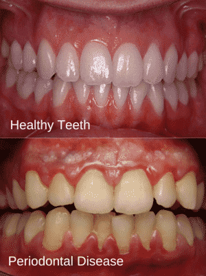 More Reasons Why You Should Floss  WebMD