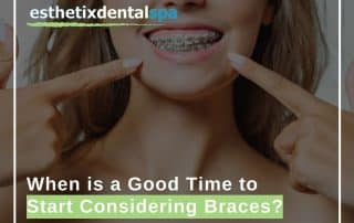 When is a Good Time to Start Considering Braces