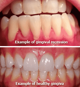Healthy Food For Your Gums