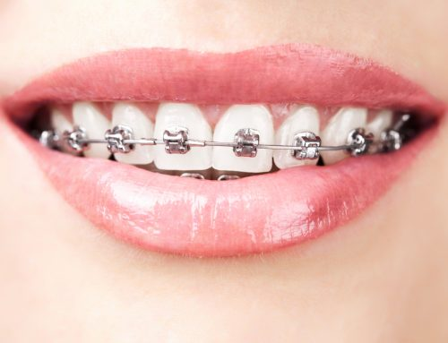 When is a Good Time to Start Considering Braces?