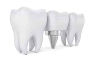 Do dental implants need to be replaced