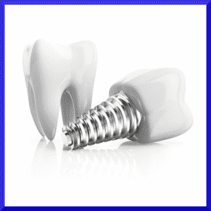 What can I eat with dental implants?