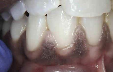 After laser treatment to remove the gingival pigmentation done in Esthetix Dental Spa