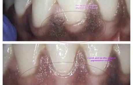 before and after laser treatment to remove the gingival pigmentation done in Esthetix Dental Spa