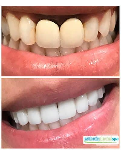 Carol Before and After dental implants procedure