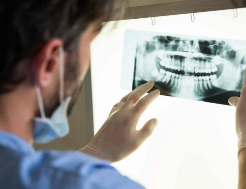 Everything You Need to Know About Dental X-Rays: