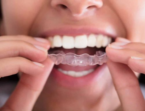 No More Awkward Metal Braces With Clear Invisalign®