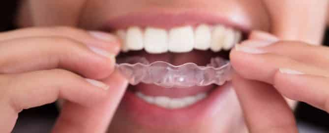 closeup of woman putting invisalign aligner on teeth
