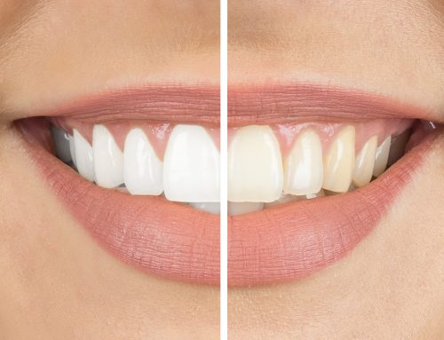 Considering Teeth Whitening? Extrinsic and Intrinsic Causes of Tooth Discoloration