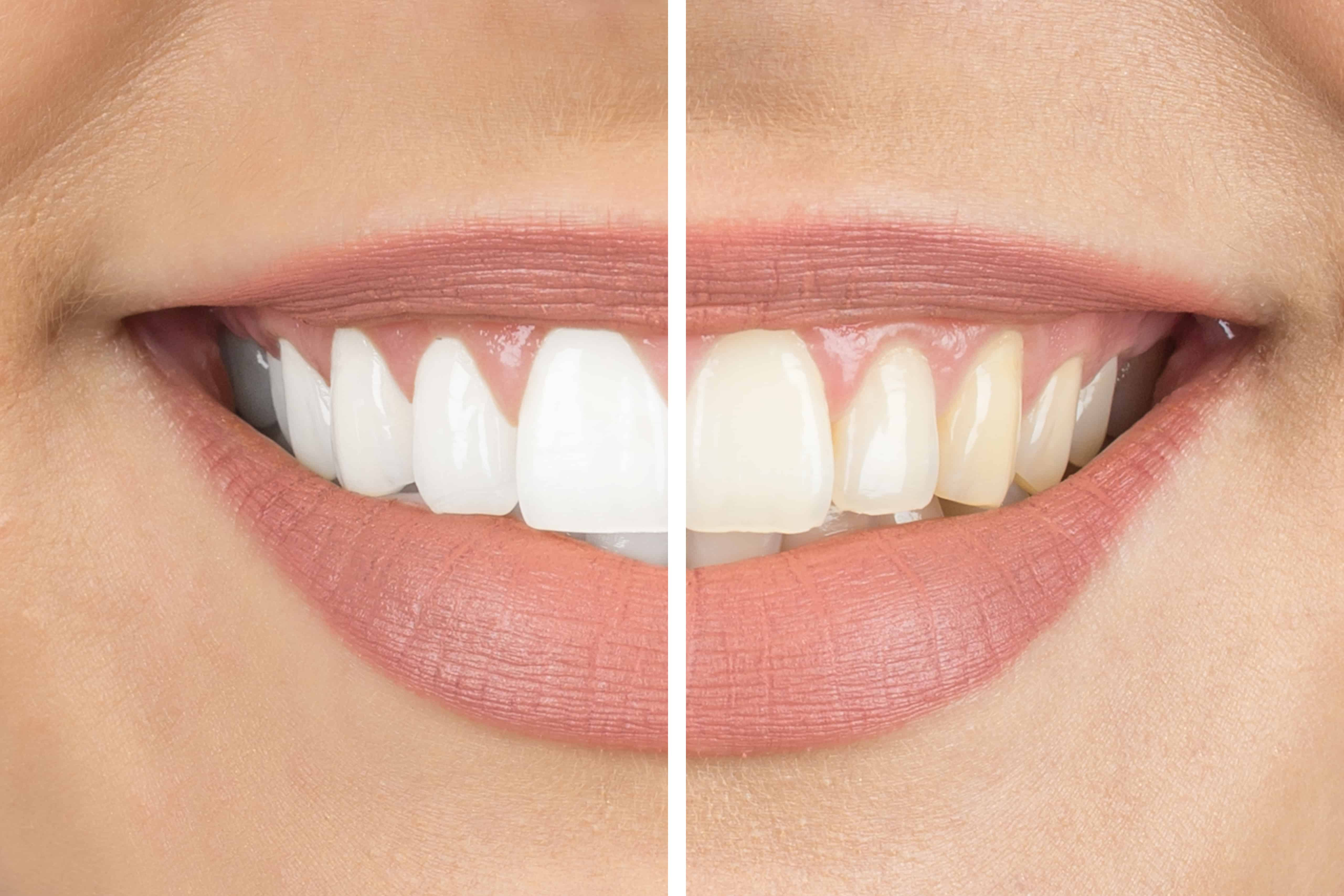 woman smiling before and after teeth whitening treatment
