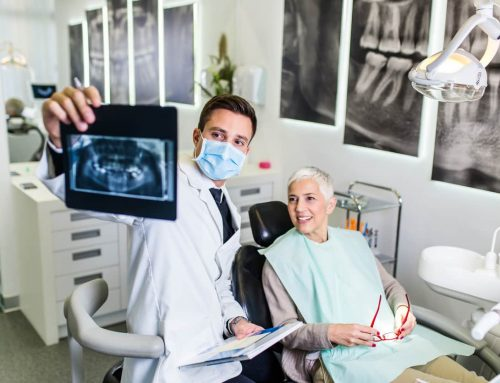 Everything You Need to Know About a Smile Makeover/FMR