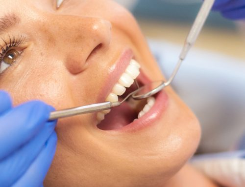 Why Fluoride Treatment is So Important For Oral Health