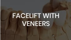 Facelift with Veneers