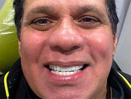Juan's teeth after getting dental implants