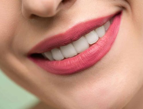 """Get """"Smart"""" With Your Invisalign Treatment"""