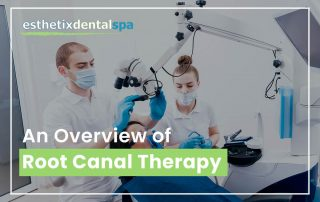 An Overview Of Root Canal Therapy
