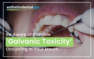 Be Aware Of Possible 'Galvanic Toxicity' Ocurring In Your Mouth