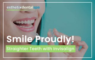 Smile Proudly! Straighter Teeth With Invisalign