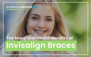 The Many Oral Health Benefits Of Invisalign Braces