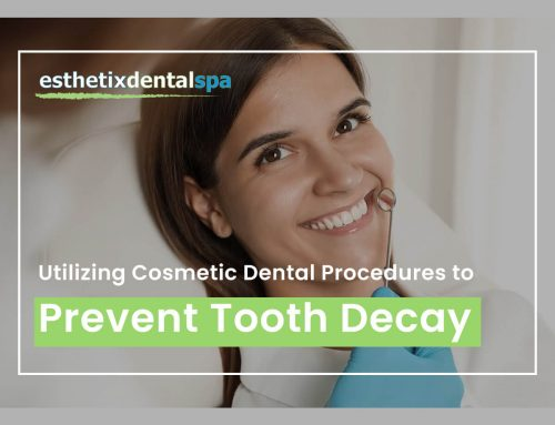 Utilizing Cosmetic Dental Procedures To Prevent Tooth Decay
