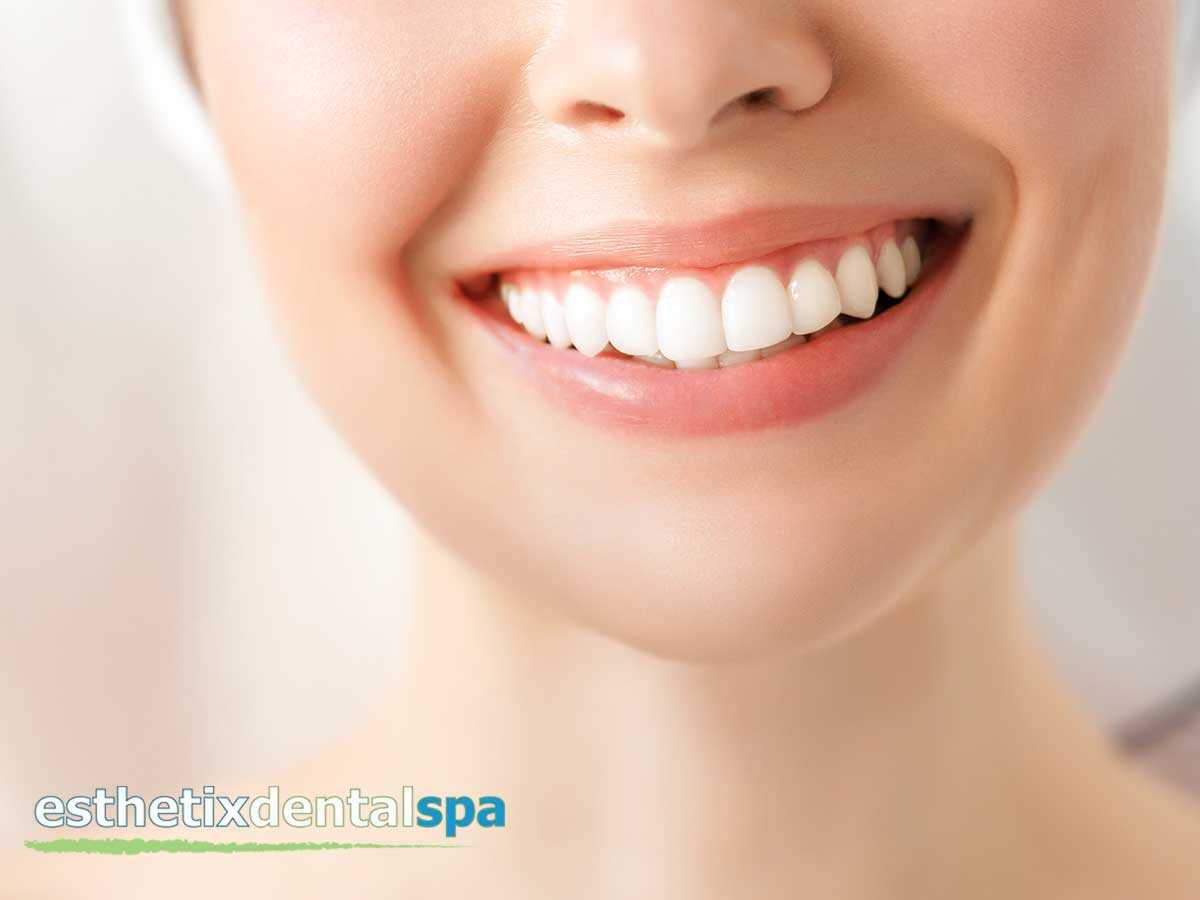 Beautiful White Smile After A Zoom Whitening Treatment In Washington Heights