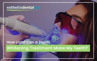 How Light Can a Zoom Whitening Treatment Make My Teeth?