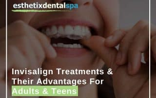 Invisalign Treatments & Their Advantages For Adults & Teens