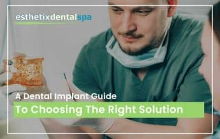 A Dental Implant Guide To Choosing The Right Solution