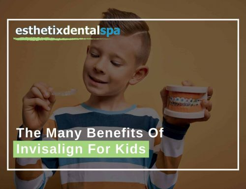 The Many Benefits Of Invisalign For Kids