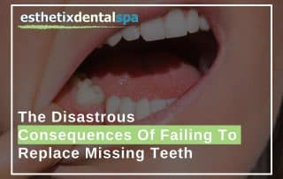 The Disastrous Consequences Of Failing To Replace Missing Teeth